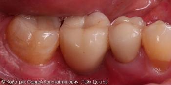 Установка 1 имплантата и восстановление разрушенного соседнего зуба вкладкой и коронкой фото после лечения
