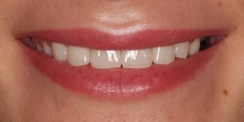 Восстановление зубов верхней челюсти керамическими винирами E.max фото после лечения