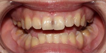 Устранение тёмных пятен между передними верхними зубами фото до лечения