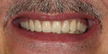 Протезирование условно-съёмными протезами на верхней челюсти (балочное соединение на 4 имплантатах) фото после лечения