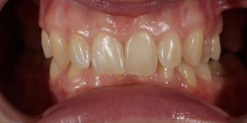 Восстановление зубов верхней челюсти керамическими винирами E.max и отбеливание Zoom3 фото до лечения