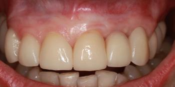 Длительное восстановление формы и объема десны после имплантации фото после лечения