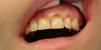 Эстетическое несовершенство трех зубов фото до лечения