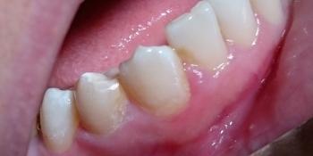 Лечение кариеса зуба 4.4, материал Estelite фото после лечения
