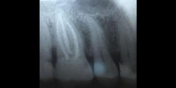 Хронический фиброзный пульпит 16 зуба фото после лечения