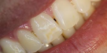Результат лечения косметического дефекта коронки зуба 1.1 фото до лечения