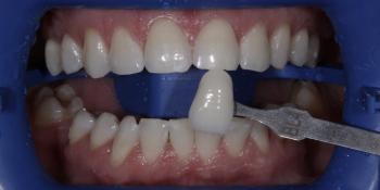 Гигиена полости рта с последующей процедурой профессионального кабинетного отбеливания системой Zoom фото после лечения