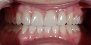 Восстановление центральных зубов верхней челюсти керамическими винирами E.max и отбеливание Zoom 3 фото после лечения