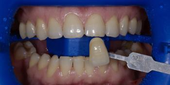 Гигиена полости рта с последующей процедурой профессионального кабинетного отбеливания системой Zoom фото до лечения