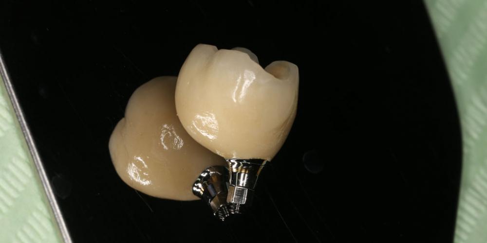 Восстановление жевательного зуба имплантатом Osstem + коронка