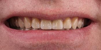 Цельнокерамические виниры на передние зубы без депульпирования зубов фото после лечения