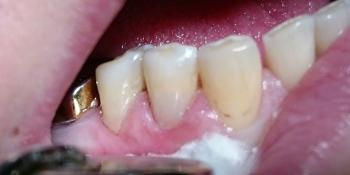 Лечение клиновидного дефекта, восстановление анатомической формы зуба фото после лечения