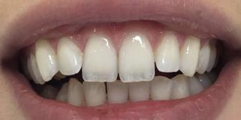 Результат отбеливания зубов с помощью системы Zoom 3 фото до лечения