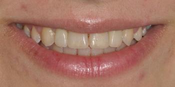 Восстановление боковых резцов верхней челюсти фото после лечения