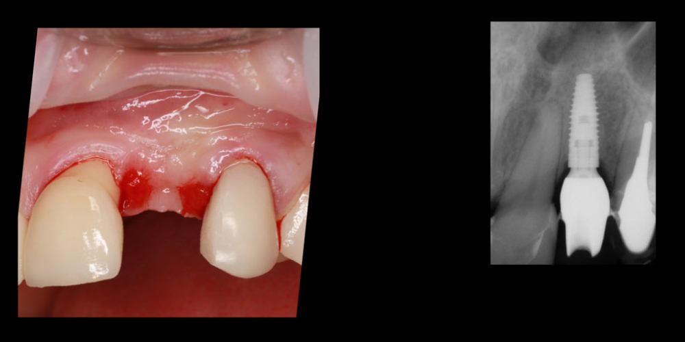Длительное восстановление формы и объема десны после имплантации