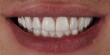 Восстановление зубов верхней и нижней челюсти керамическими винирами E.max фото после лечения