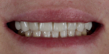 Восстановление зубов верхней челюсти керамическими винирами E.max и отбеливание Zoom3 фото после лечения