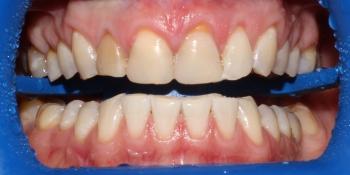 Восстановление формы и эстетики четырех центральных резцов винирами Е-max фото до лечения