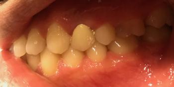 Выпадение металло-керамической коронки с зуба фото после лечения
