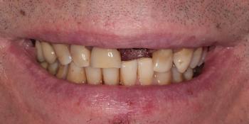 Восстановление передних зубов верхней челюсти фото до лечения