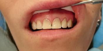 Эстетическое несовершенство трех зубов фото после лечения