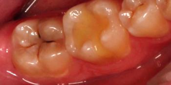 Пациент обратился с жалобой на кариозную полость в нижнем моляре справа фото до лечения