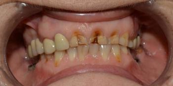 Восстановление зубов с использованием коронок на основе диоксида циркония и керамических виниров фото до лечения