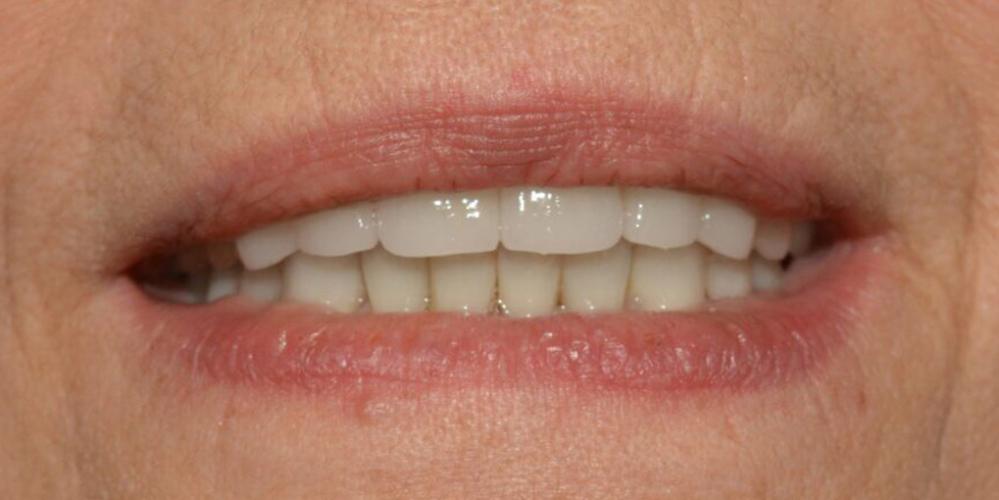 Восстановление зубов с использованием коронок на основе диоксида циркония и керамических виниров