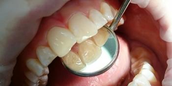 Жалоба на эстетическое несовершенство 2.1 зуба и потемнение между 1.1 и 2.1 зубами фото после лечения