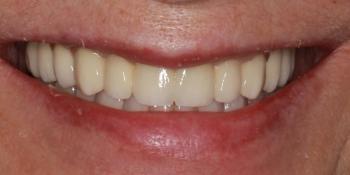 Полное протезирование верхней и нижней челюсти несъемными мостовидными протезами фото после лечения