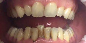 Результат снятия темного налета на зубах фото до лечения