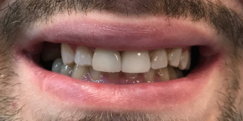 Восстановление зубов керамической вкладкой и керамическим виниром фото после лечения