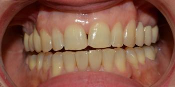 Неудовлетворительная эстетика двух передних нижних центральных зубов фото после лечения