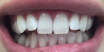 Результат отбеливания зубов с помощью системы Zoom 3 фото после лечения