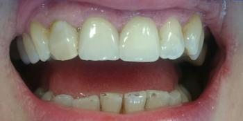 Жалоба на выпадение старой коронки центрального зуба фото после лечения