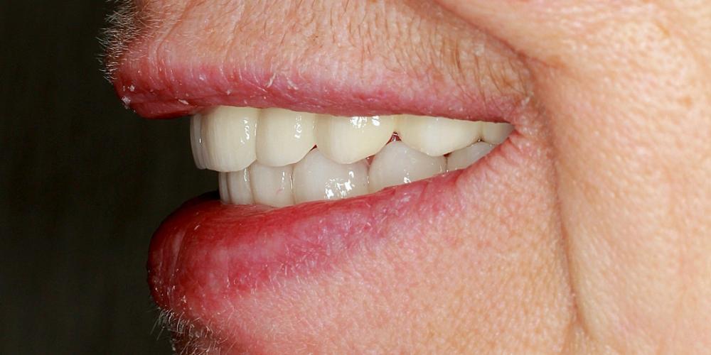 Полное протезирование верхней и нижней челюсти несъемными мостовидными протезами