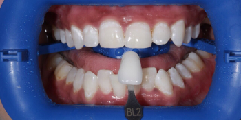 Результат проф отбеливания ZOOM-3, фото до и после фото после лечения