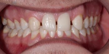 Изменение формы зубов верхней челюсти, коррекция цвета, восстановление функции фото до лечения