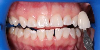 Комплексная чистка + отбеливание ZOOM 4, результат до и после фото до лечения