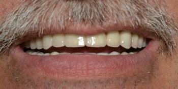 Протезирование металлокерамическими коронками на имплантах на верхней и нижней челюcти фото после лечения