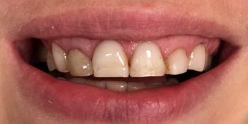 Комплексная реабилитация зубочелюстной системы керамическими винирами и коронками фото до лечения