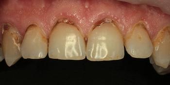 Эстетические реставрации передних зубов фото до лечения