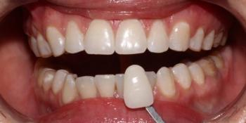 Фото результата отбеливание зубов с помощью системы Zoom 3 фото после лечения