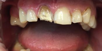 Восстановление зубов керамической вкладкой и керамическим виниром фото до лечения
