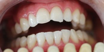 Результат отбеливания зубов системой ZOOM при дисколорите фото после лечения