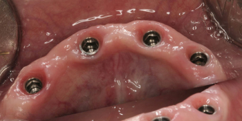 Результат имплантации и протезирования на четырех имплантатах фото до лечения