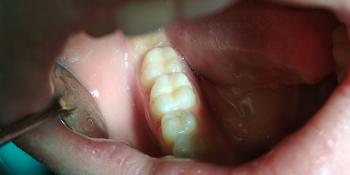 Жалобы на потемнение пломб, хронический кариес фото после лечения