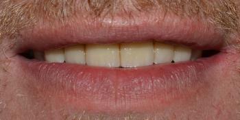 Восстановление зубов ВЧ с использованием имплантатов и мостовидных протезов на своих зубах фото после лечения
