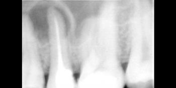 Перелечивание корня зуба фото до лечения