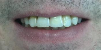 Восстановление коронковой части с помощью пломбы из композитного материала + коронка фото после лечения